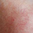 skin treatment