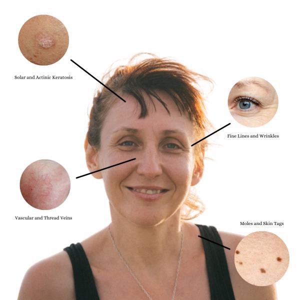 Face Diagram (1)